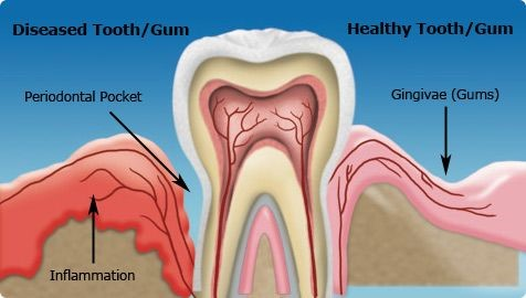 Seattle-holistic-dentistry-periodontal-disease-diabetes