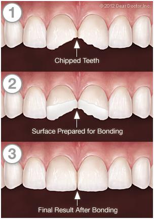 tooth-bonding-process