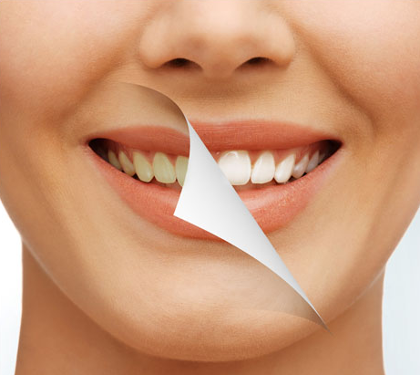 You can enhance your smile with professional teeth whitening from Integrative Dentistry